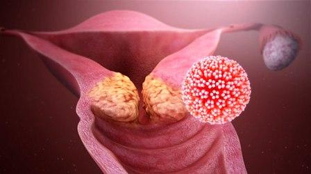 cervical cancer-HPV